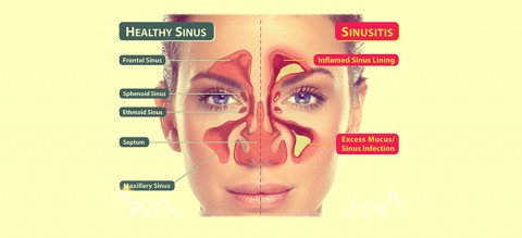 5-Symptoms-of-a-Sinus-Infection-and-When-to-Visit-the-Doctor