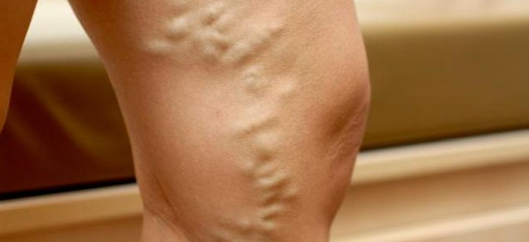 Varicose-Veins-What-Most-People-May-Not-Know