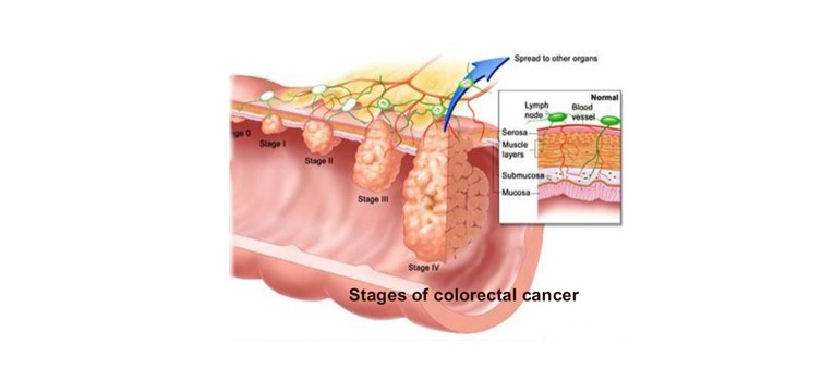 colorectal-surgery-in-Mumbai-3