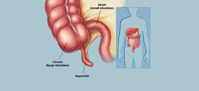 Laparoscopic-Surgery-for-Appendicitis