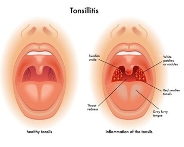 Can tonsillectomy for adult join. All