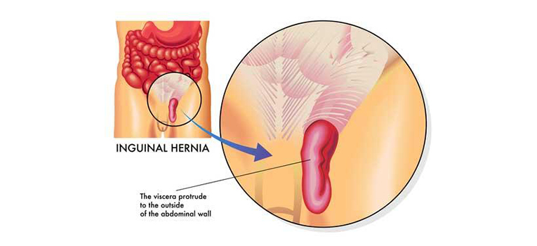 Why Is An Inguinal Hernia More Common In Men Than In Women